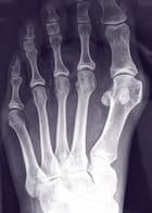 radiografia de la lesión de escalada hallux rigidus