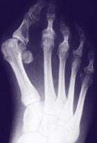 radiografia de un pie de un escalador con hallux valgus