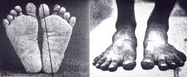 pies descalzos que nunca han llevado calzado