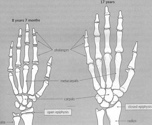 ilustración del estudio de Morrison Schöffl comparando la anatomia de la mano de adolescentes con escaladores desarrollados para el entrenamiento de dedos