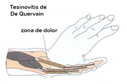 Dibujo de la Tesinovitis de de quervain, la lesión por entrenar pinzas