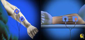 aplicación de electroestimulación en el antebrazo para entrenar escalada