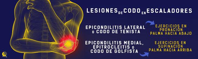 ejercicios para el tratamiento de epicondilitis, epitrocleitis, codo de tenista y codo de golfista