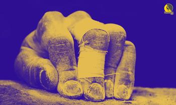importancia del cuidado de la piel de las manos en la escalada