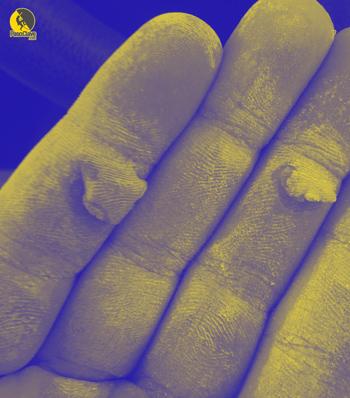 heridas en las manos de los escaladores