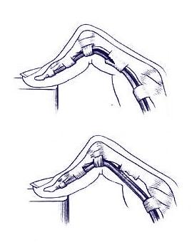 Lesiones en los tendones de colágeno