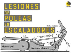 Lesiones de poleas en escaladores