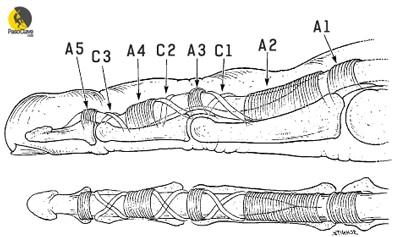 Sistema de poleas del dedo de un escalador