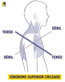 síndrome superior cruzado en la espalda de escalador