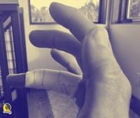 Aplicación de esparadrapo para limitar la movilidad articular del dedo