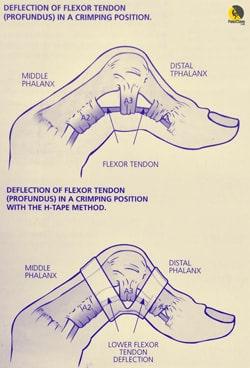 vendaje en H con esparadrapo para lesiones de poleas