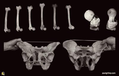 la genética influye para mejorar la movilidad articular da la cadera