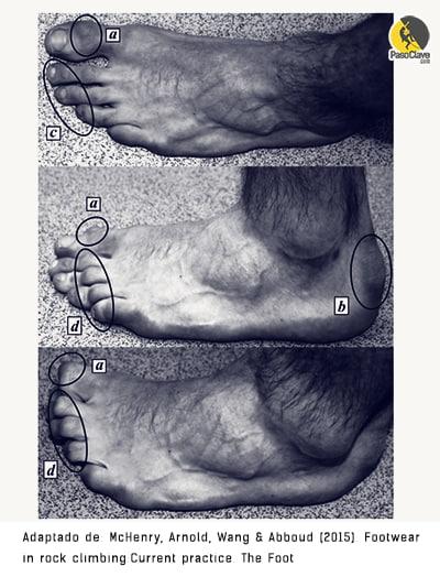 Lesiones en los pies provocadas por los pies de gato y la escalada